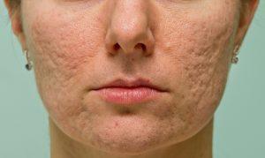 Front Ansicht einer Frau mit Narben im Gesicht